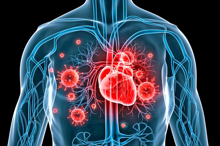 Ateneo de Cardiología - Caso clínico: Endocarditis infecciosa en TAVI
