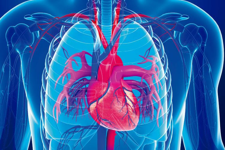 Ateneo de Cardiología - Puesta al día - Rol del ECMO en distintos escenarios
