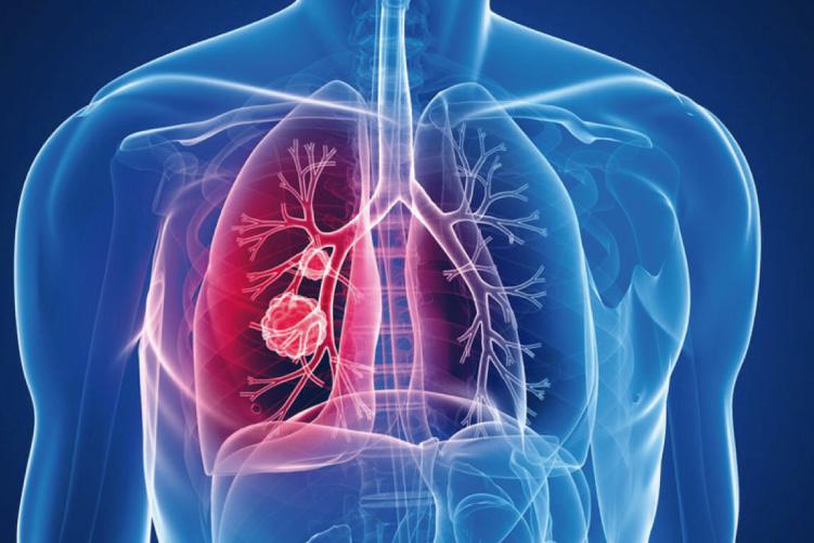 Ateneo de Cardiología - Bibliográfico - Guías de la Sociedad Europea de Cardiología sobre el manejo del tromboembolismo pulmonar