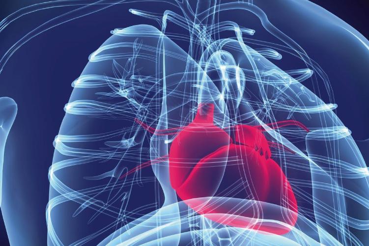 Ateneo de Cardiología -  Caso - Enfermedad de tronco de coronaria izquierda