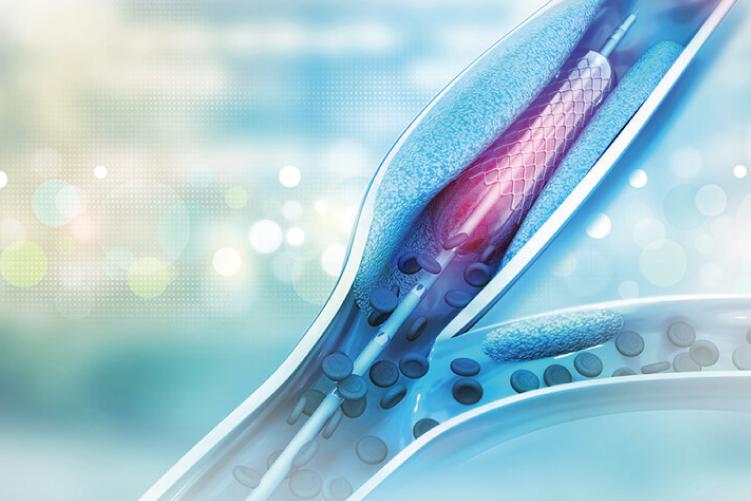 Ateneo de Cardiología - Puesta al día - Stens Bioabsorbibles
