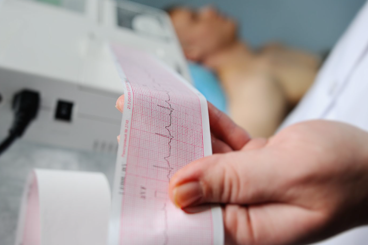 Ateneo Central Online | Electrocardiograma y muerte súbita en el deportista