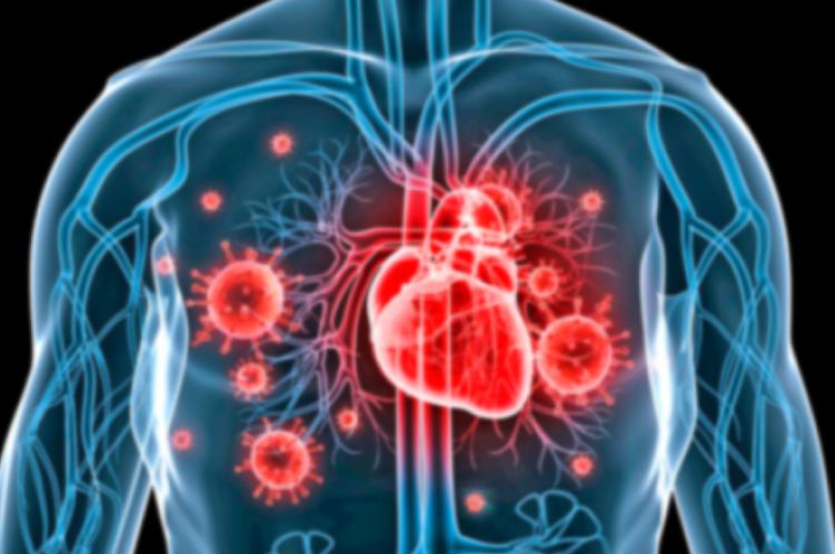 Ateneo Central Online | Endocarditis Infecciosa ¿Cuándo debemos intervenir?