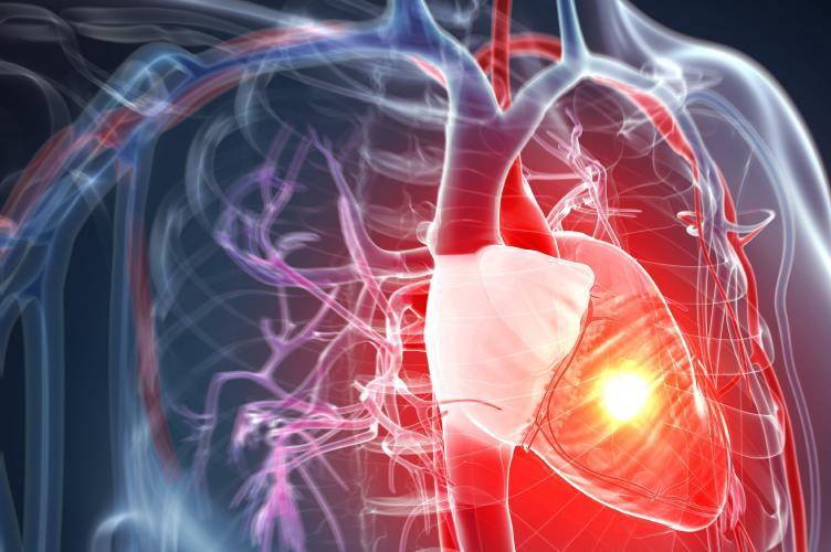 Ateneo Central Online | Shock Cardiogénico postoperatorio. El uso de Swan-Ganz y ECMO.