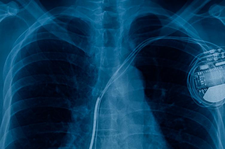 Preexcitación ventricular asintomática: ¿Una entidad benigna? A propósito de un caso.